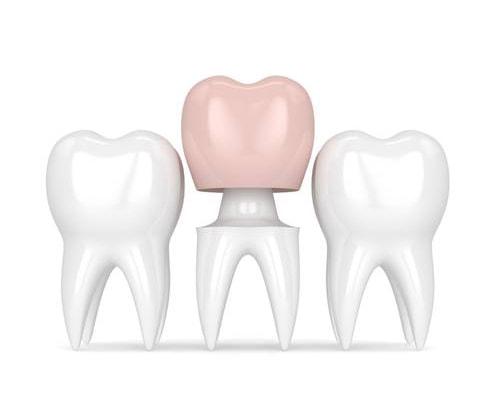 family dentist family dental station glendale scottsdale sun city west az crowns image